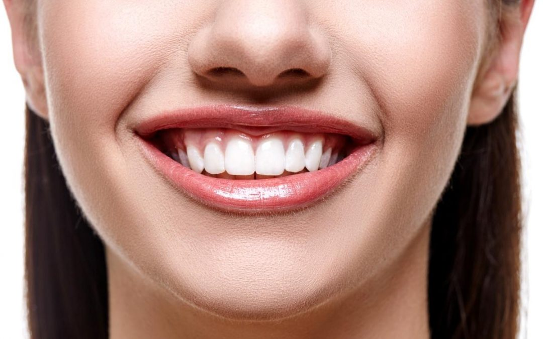 Teeth Whitening Service in Milton