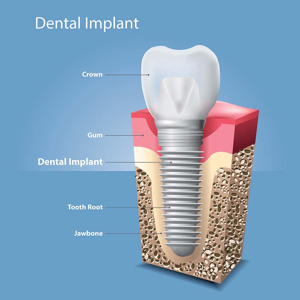 Teeth dental implant illustration